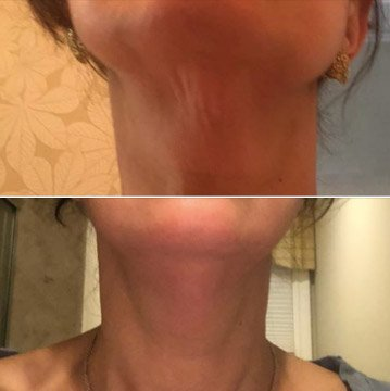 How To Get Rid of Sagging Neck Skin Without Surgery
