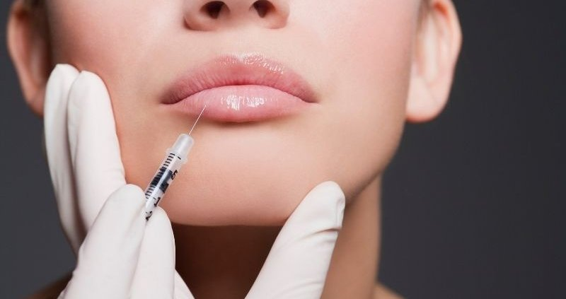 Everything You Want To Know About Juvederm