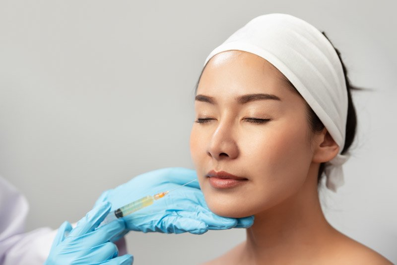 Dermal Fillers - Radiesse in Avon, CT