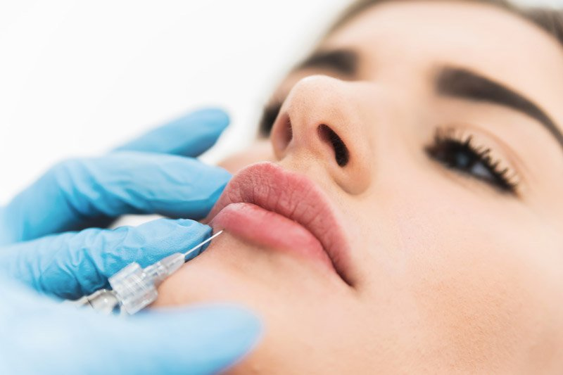 Dermal Fillers - Restylane in Avon, CT