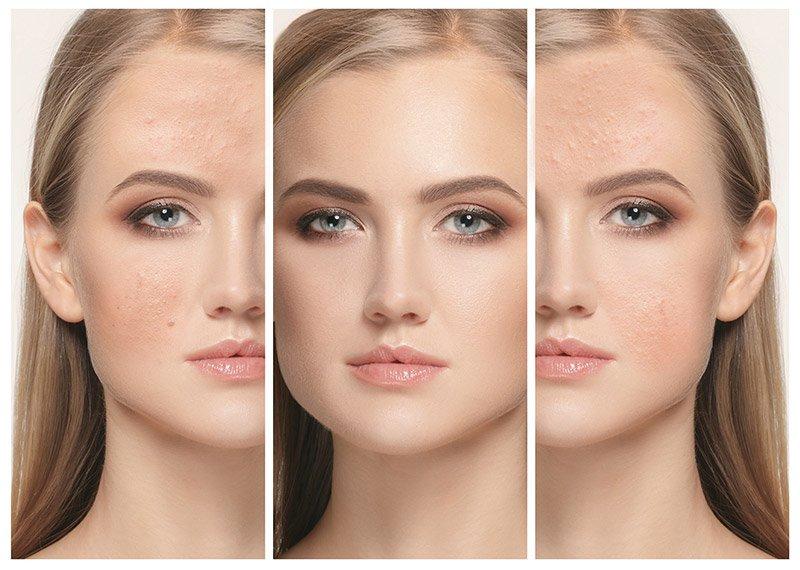 Acne Treatments in Avon CT