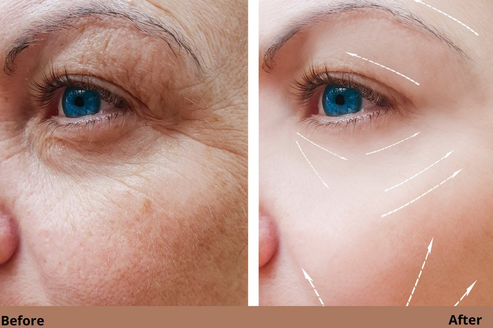 Frown Lines Treatment in Avon, CT
