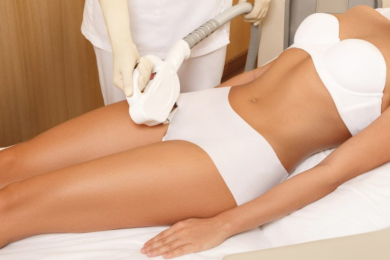 Laser hair removal in Avon, CT