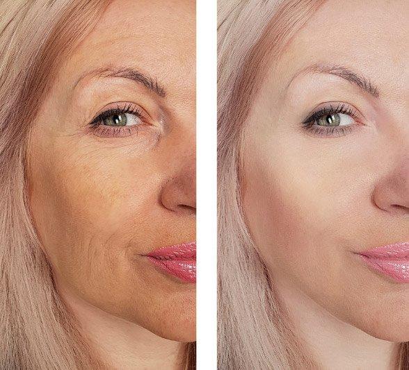 Anti Wrinke Treatments in Avon CT