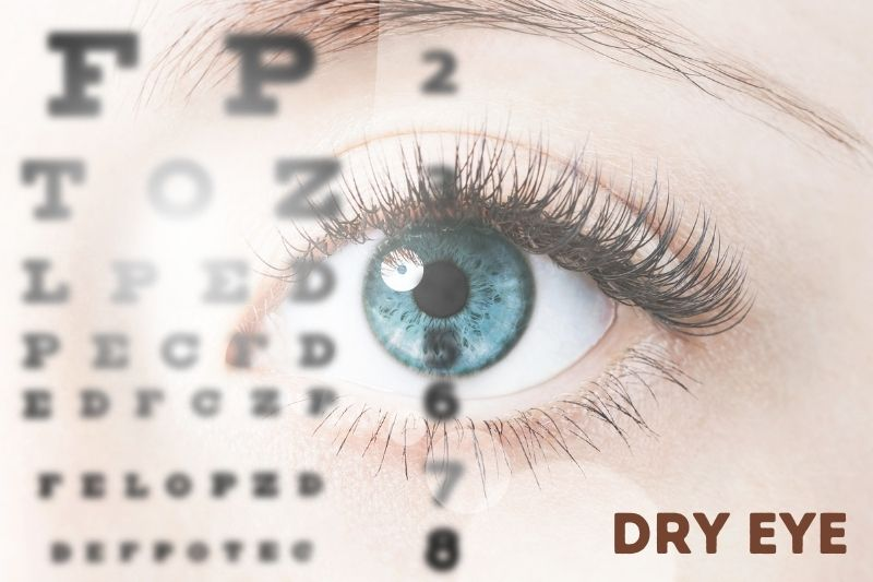 Dry Eye Treatments - Avon, CT