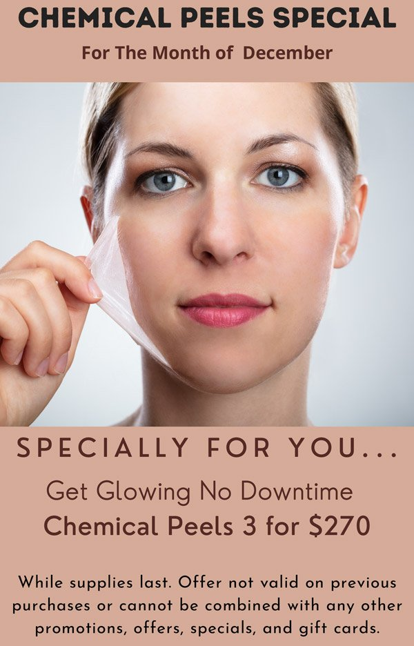 Chemical Peels Special 3 for $270