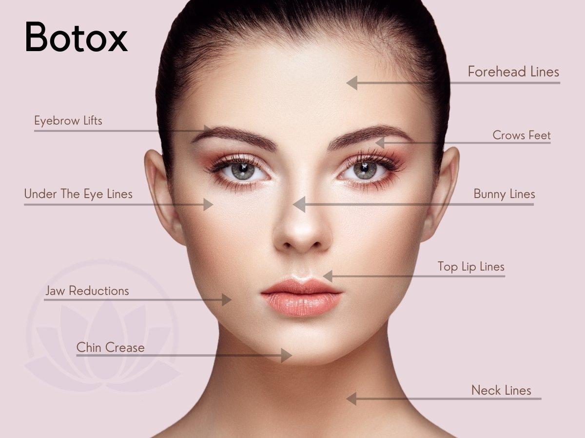 Botox Treatment - Avon, CT