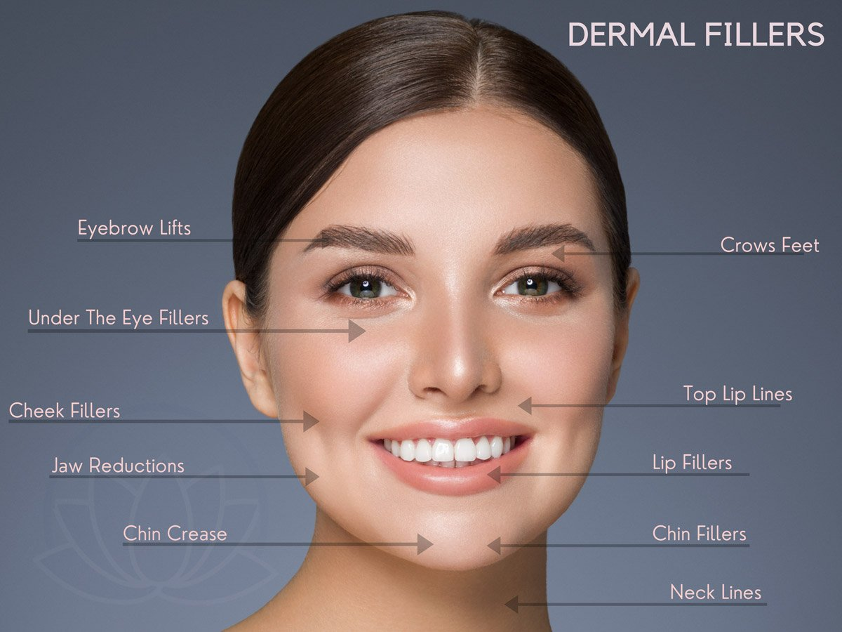 Dermal Fillers - Avon. CT