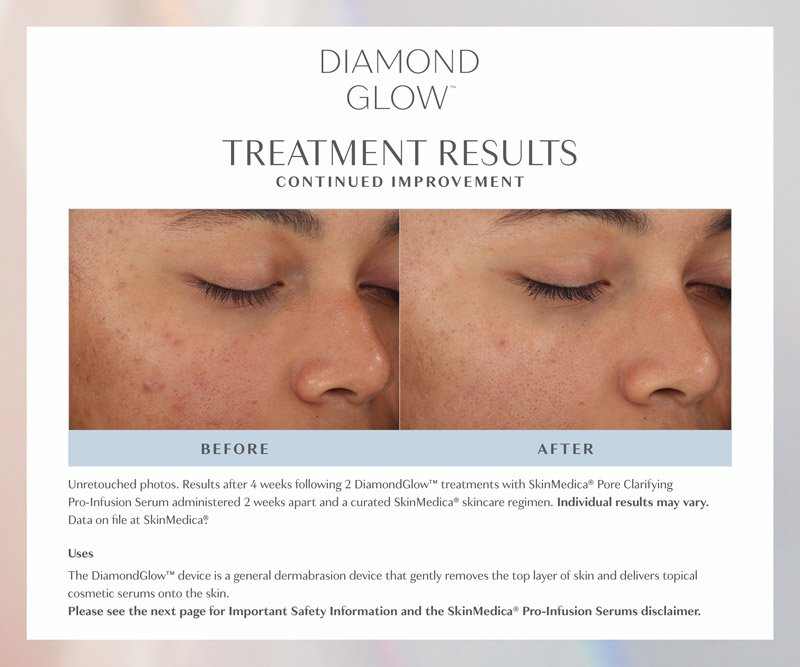 Diamond Glow Facial - Before & After