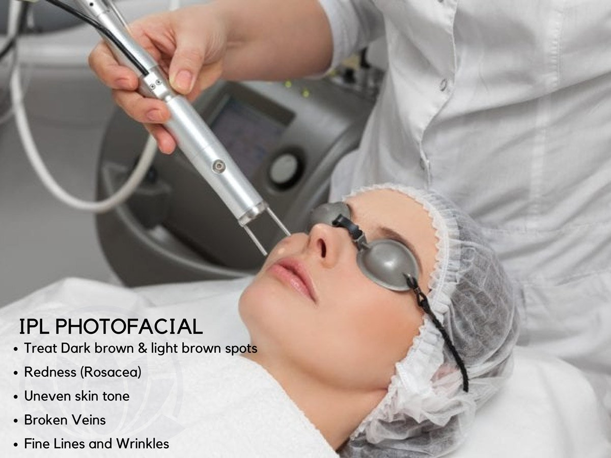 IPL Photofacial - Avon, CT