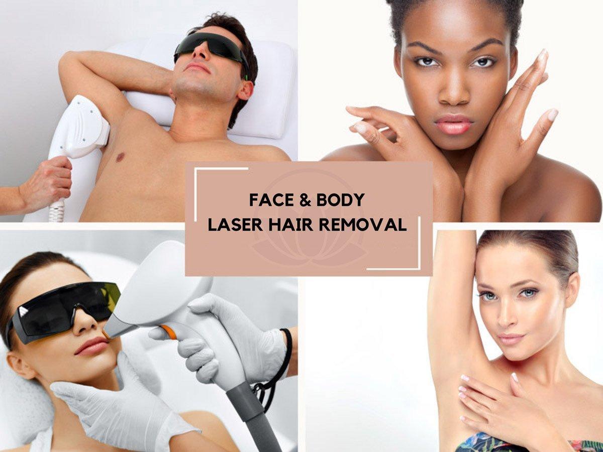 Laser Hair Removal - Avon, CT