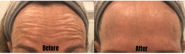 Forehead Lines Treatment with Dysport