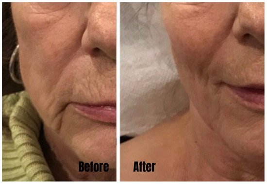 Fillers - Before & After