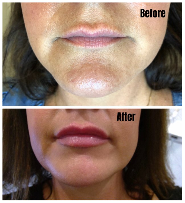 Lip Fillers - Before & After