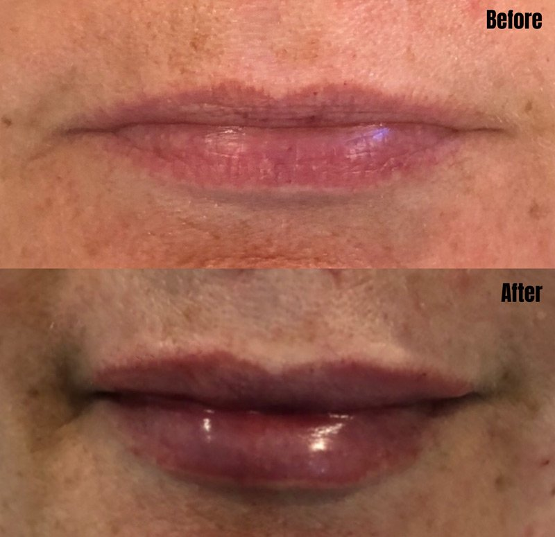 Lip Fillers Subtle Lips - Before & After