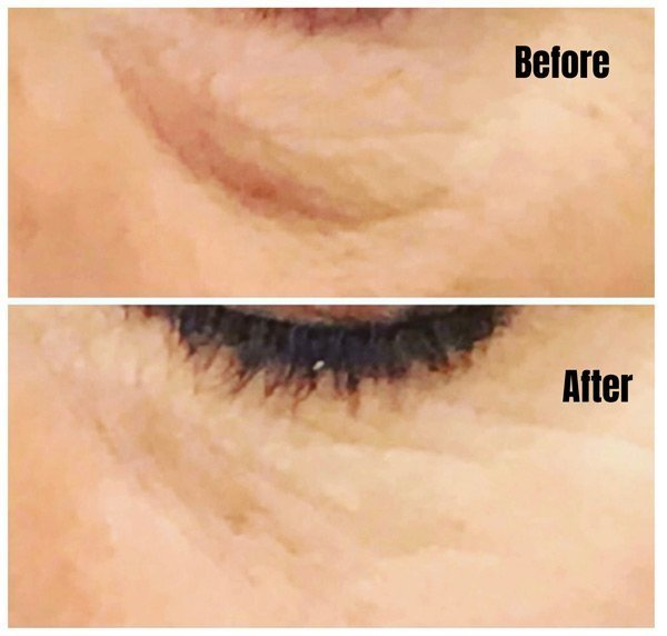 Under The Eye Fillers