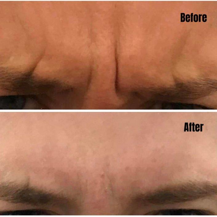 Dysport Forehead