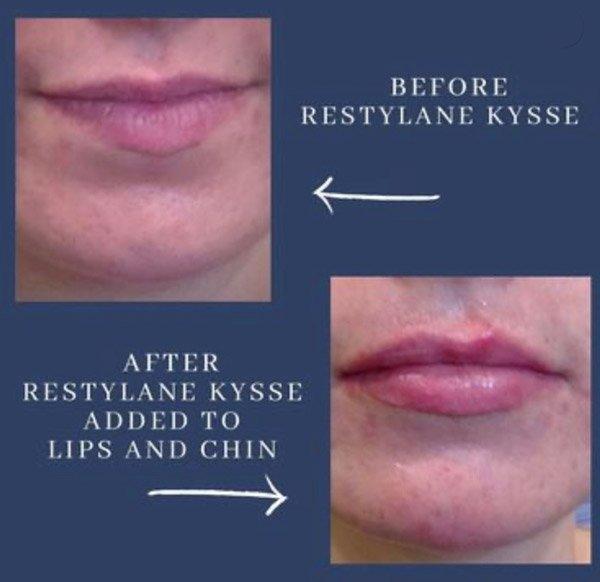 Restylane Lips and Chin