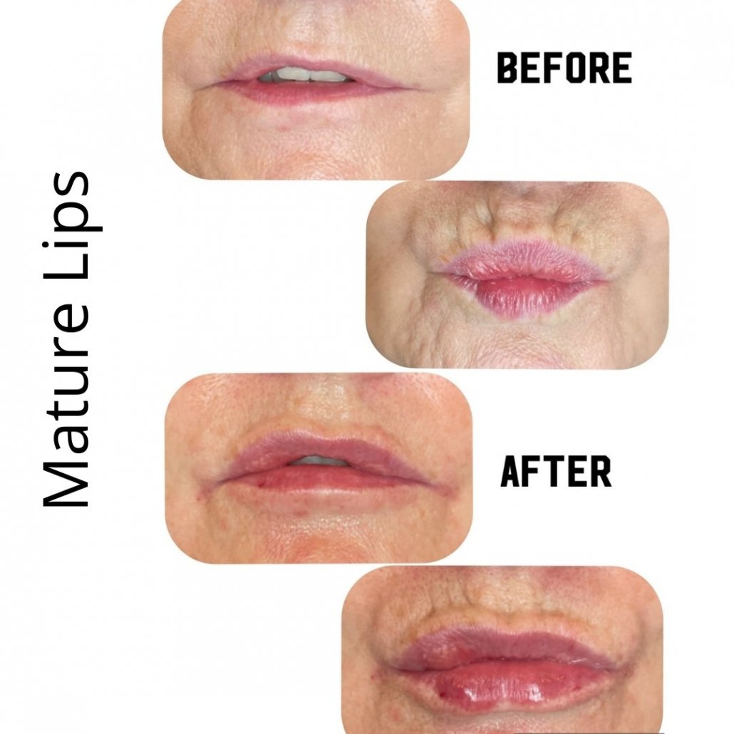 Mature Lips